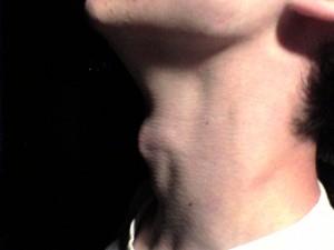 Body-Focused OCD (Swallowing, Breathing, Blinking)
